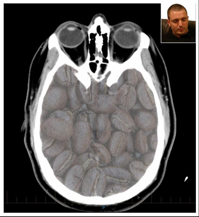 3gdoctor CT image (model)