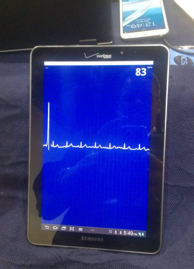 Alivecor ECG on Samsung Galaxy Tab 77