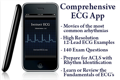 Instant ECG: An Electrocardiogram Rhythms Interpretation Guide