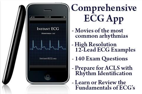 Instant ECG: An Electrocardiogram Rhythms Interpretation Guide
