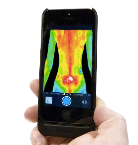 Flir being used in medical exam
