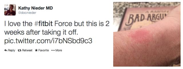 Kathy Neider FitBit Force